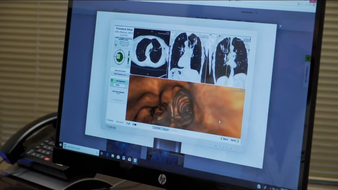 Veran Spin: GPS Tracks Lung Cancer