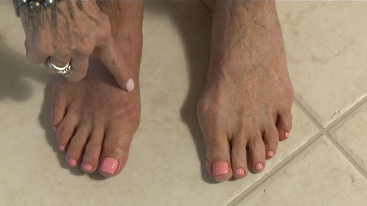 Banish bunions for good!