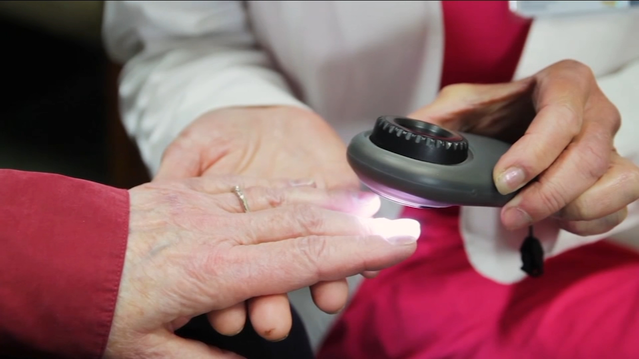 Did you know that you can get skin cancer under a finger or toe nail?