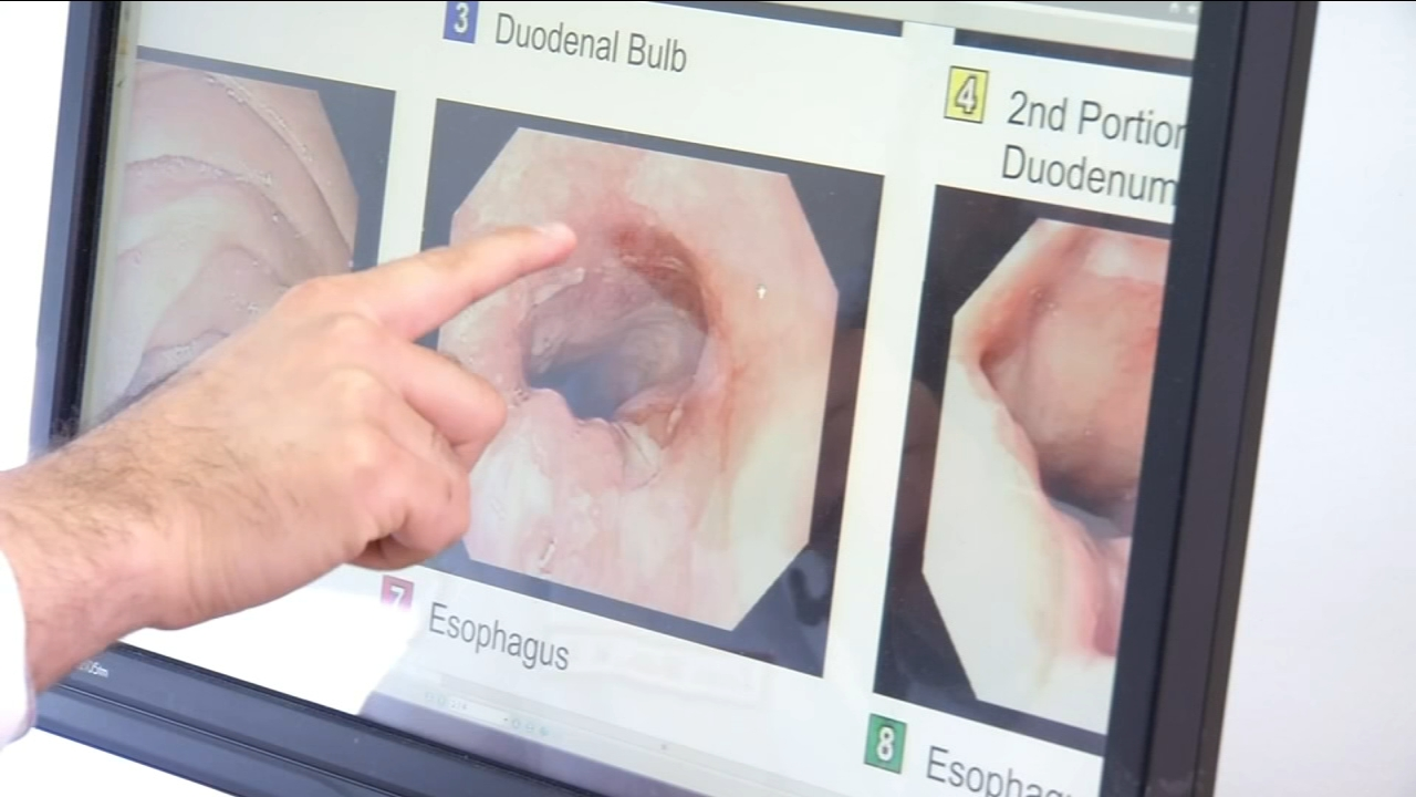 Health Watch: WATS3D Brush Detects Esophageal Cancer