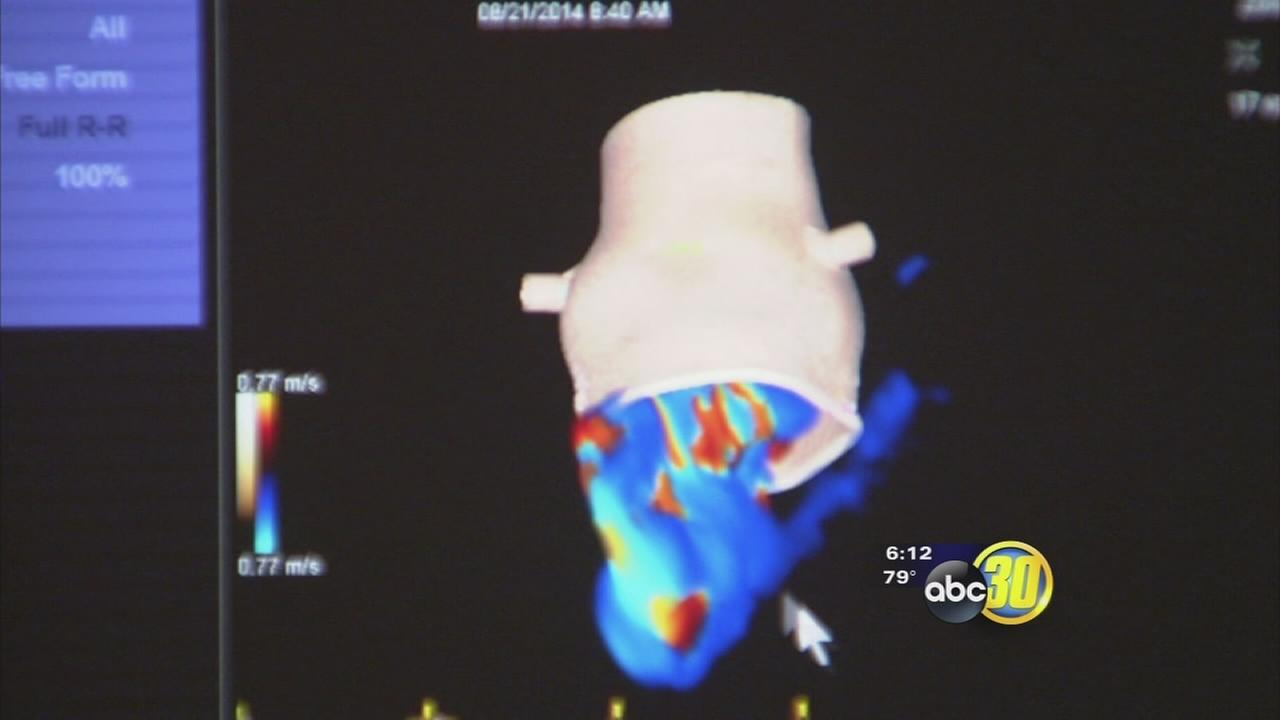 Fresno doctors using 4D technology to diagnose heart problems