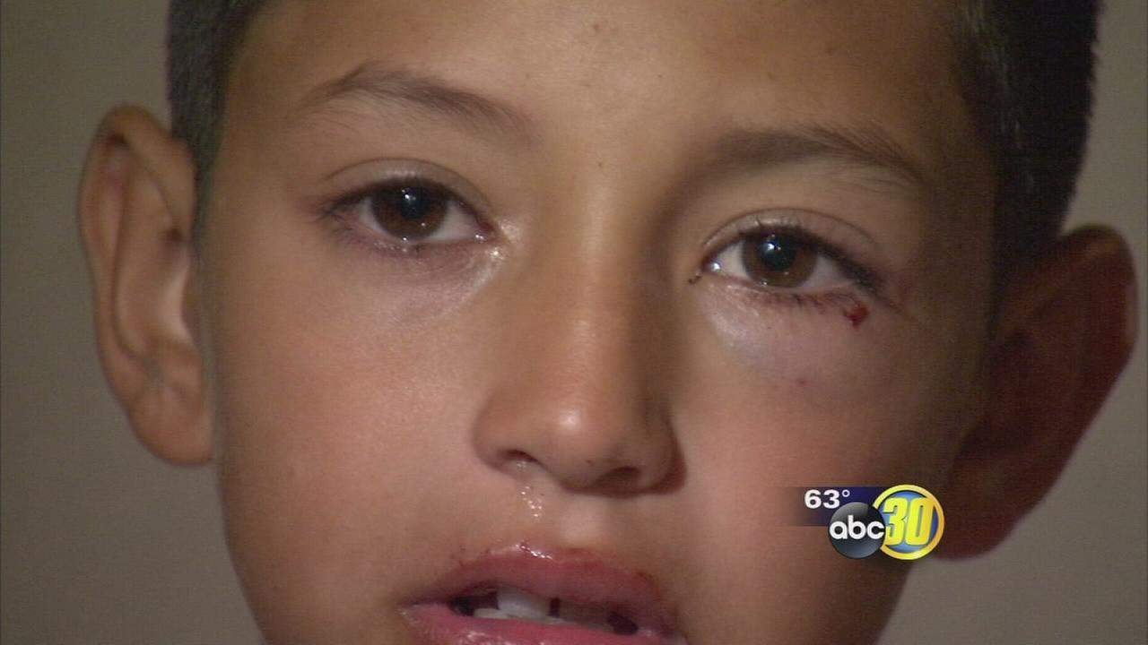 8-year-old survive vicious dog attack