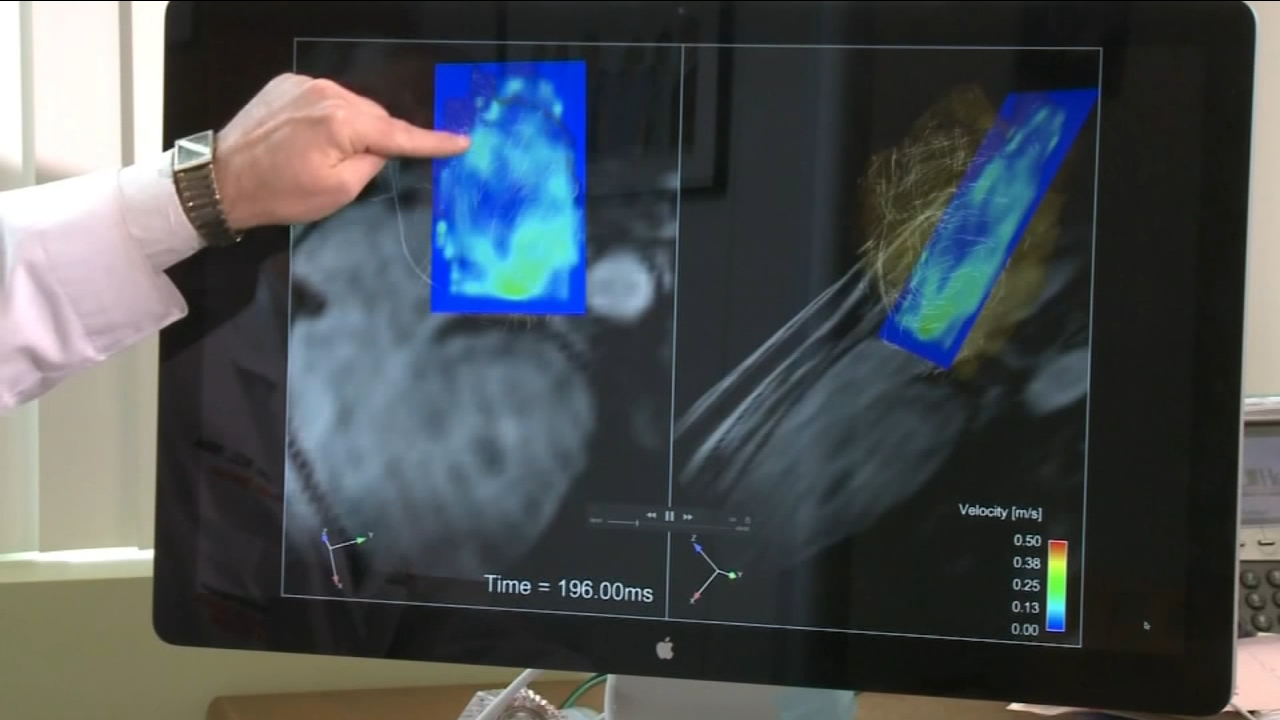 More than six million Americans suffer from atrial fibrillation, a condition that makes your heart race and can cause a stroke. Now a new study is aimed at finding those patients w
