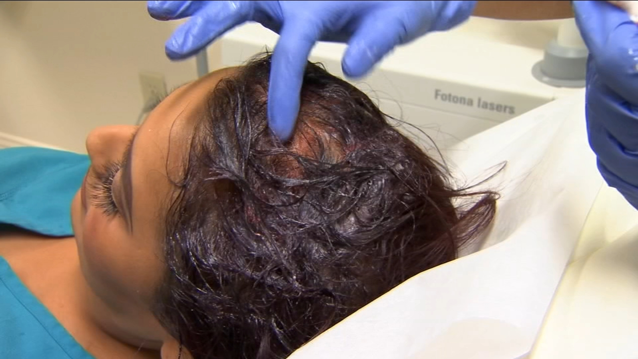 Platelet-rich plasma, also known as PRP, helps stimulate hair growth by using your own blood