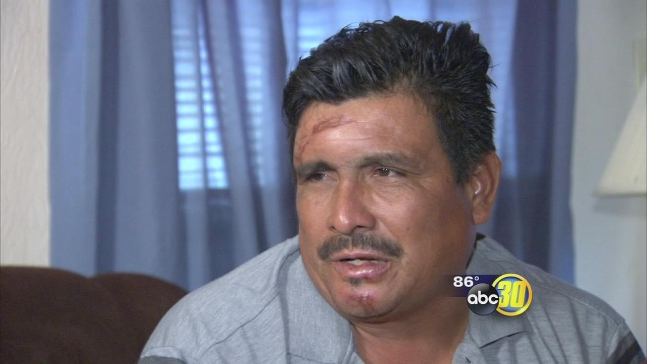 Survivor of a deadly charter bus crash on Highway 99 near Livingston speaks