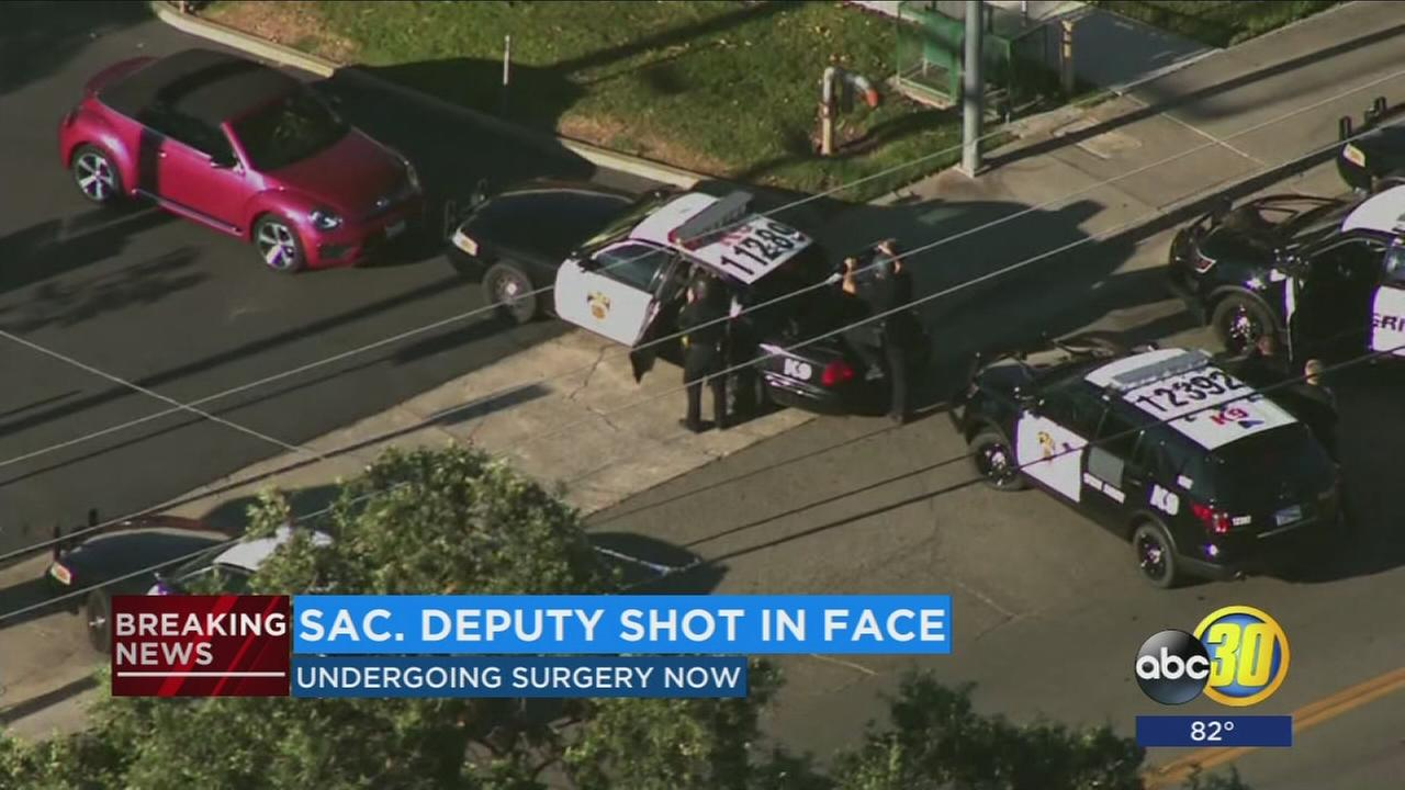 California sheriff deputy shot in face; condition unknown
