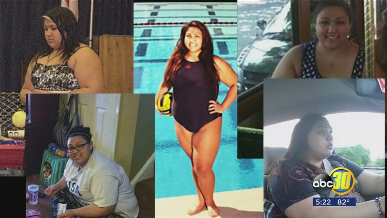 Bariatric Surgery Not Just For Adults Now Abc30 Com