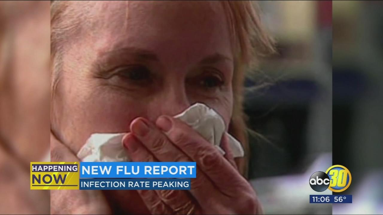 CDC says its shaping up to be a bad flu season in new report