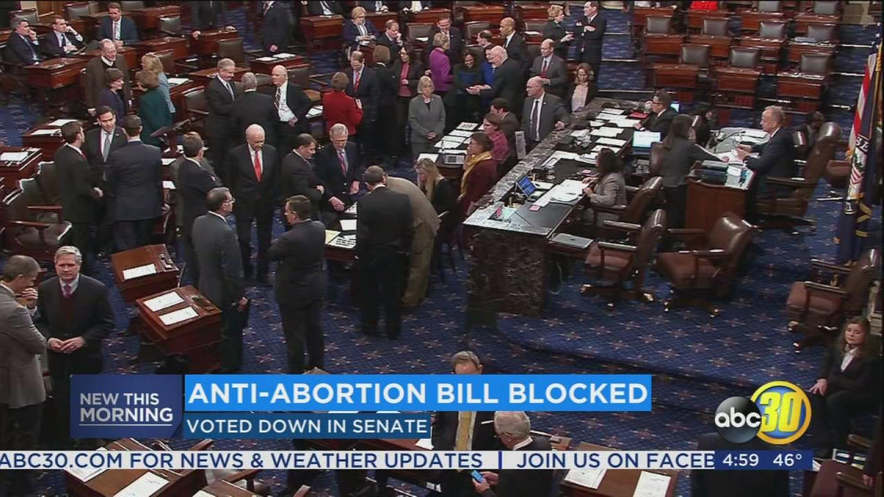Senate rejects bill to ban abortions after 20 weeks