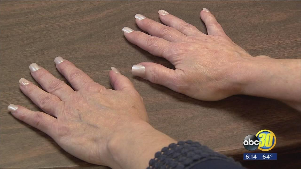 FDA approved filler for hands is restoring what time has taken away