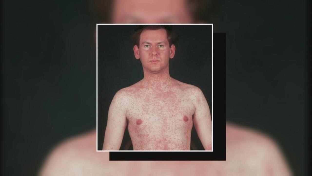 Confirmed measles case in Fresno County
