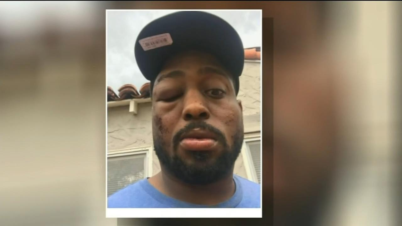 Merced man claiming he was beaten by police facing charges