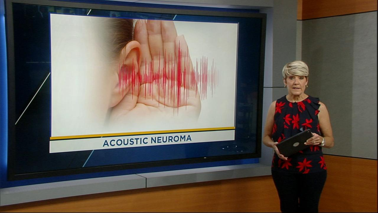 Acoustic Neuroma: Brain Space Tumor