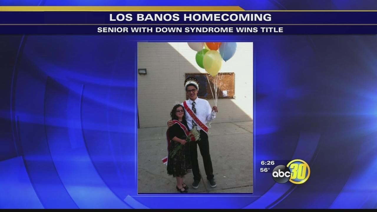 Los Banos student with Down syndrome named homecoming queen