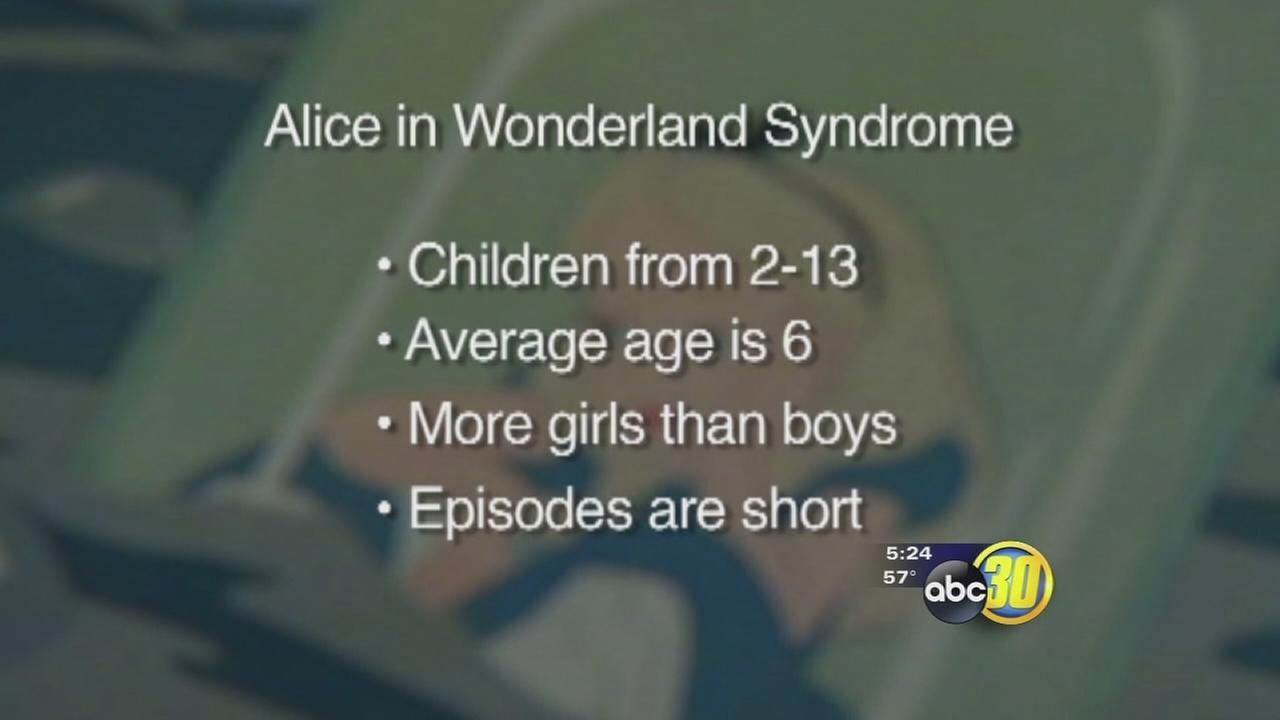 Alice in Wonderland Syndrome: Symptoms and Treatment 87