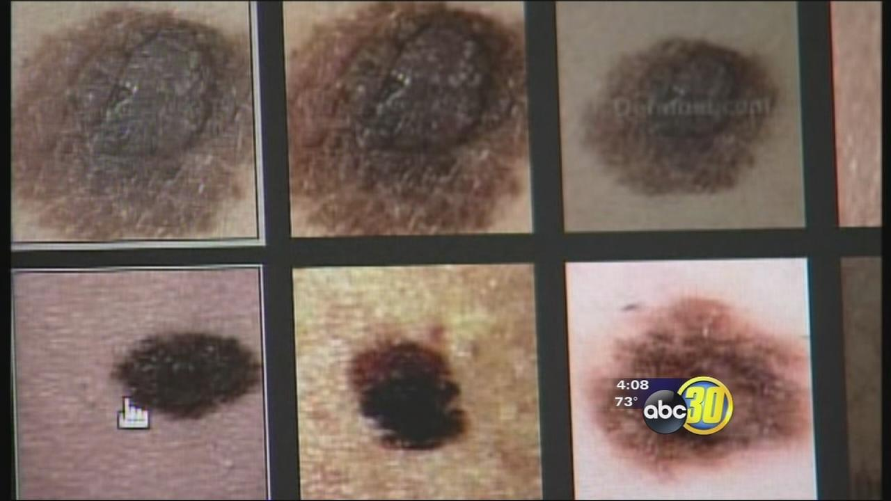 UC Merced researchers helping find new ways to treat melanoma