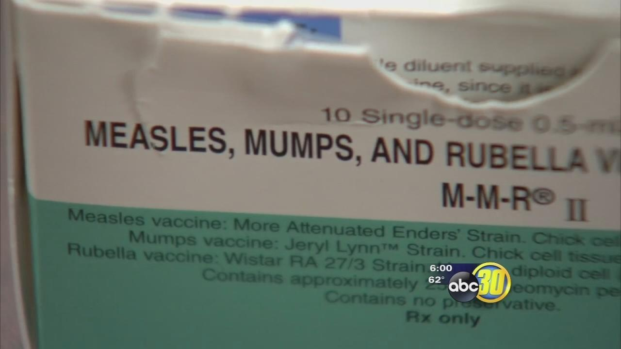Child in Merced County tests positive for measles