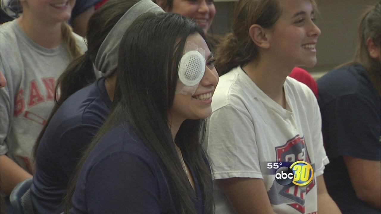 Parlier teen who was shot in the eye shares her story