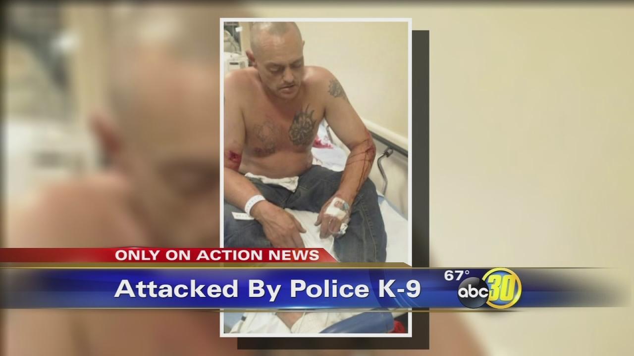 Fresno police K-9 attacks innocent bystander