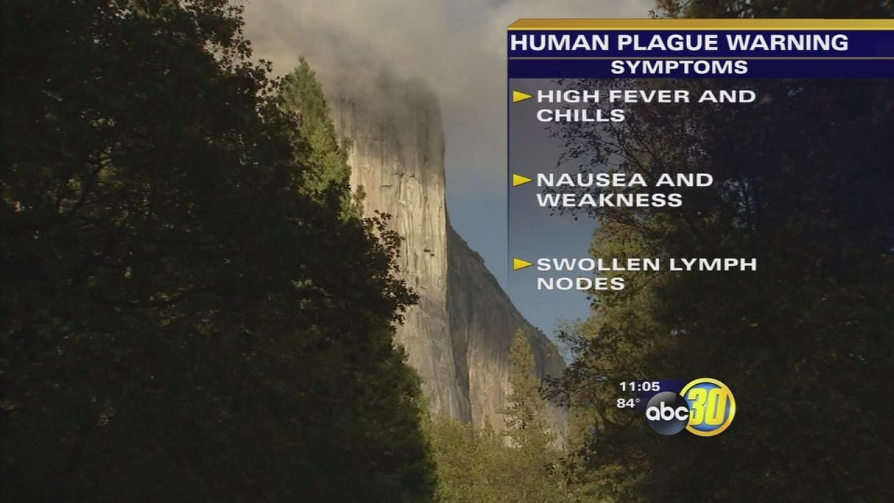 California Department of Public Health investigates case of human plague