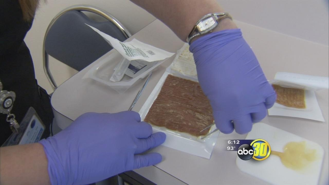 Honey providing sweet results for patients in Fresno