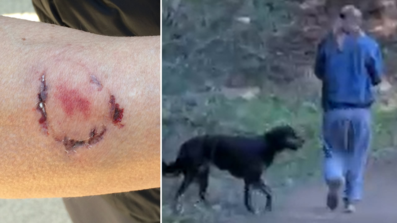 The East Bay Regional Park District Police Department released these photos following an an alleged attack in Anthony Chabot Regional Park in Oakland, Calif. on Jan. 3, 2019.
