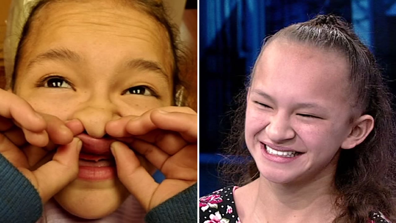 Aileen Hernandez was bullied from a young age because she had missing teeth.