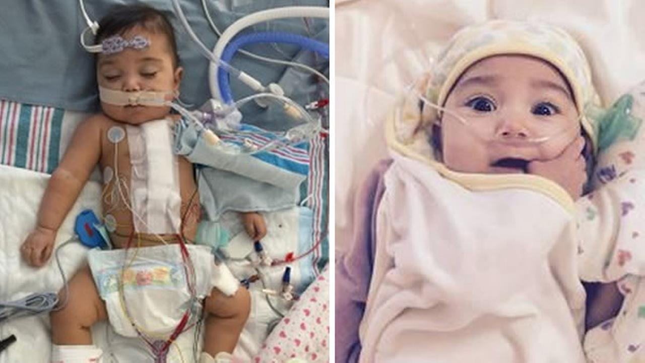 One-year-old Paloma Bartocci was born premature with a congenital heart defect.