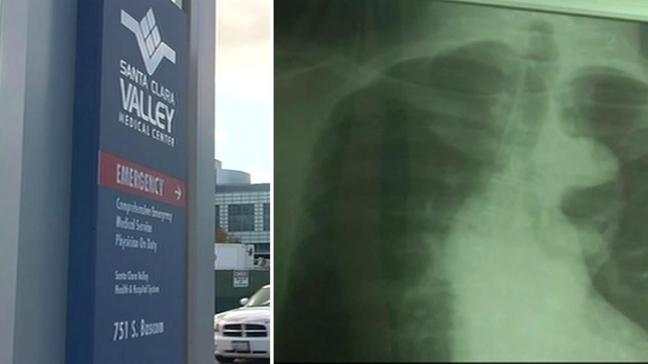The Santa Clara Valley Medical Center on Dec. 11, 2015 is trying to track down more than 350 newborns and their mothers because they may have been exposed to tuberculosis.