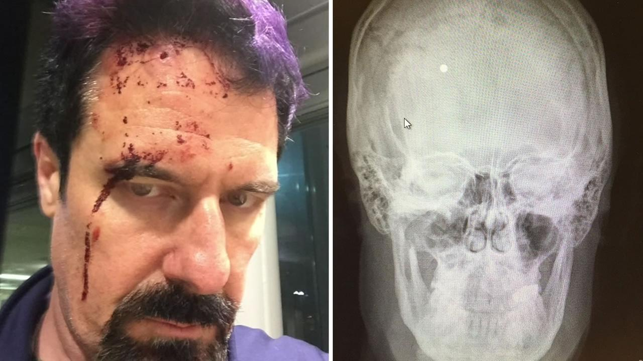 Scott Bradley show off his injuries after he was shot in the head with a BB gun in San Leandro, Calif. on March 25, 2016.