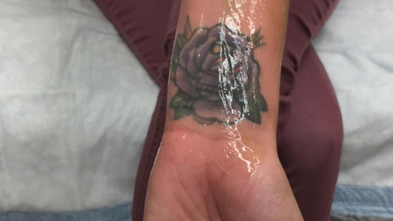 Gang tattoo removal program expands to help human trafficking victims