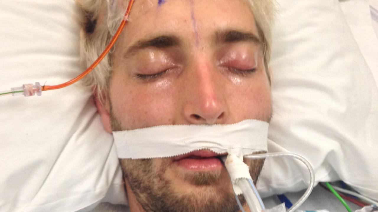 San Francisco General Hospital officials are asking the public to help identify a man found critically injured in the citys Duboce Triangle neighborhood.