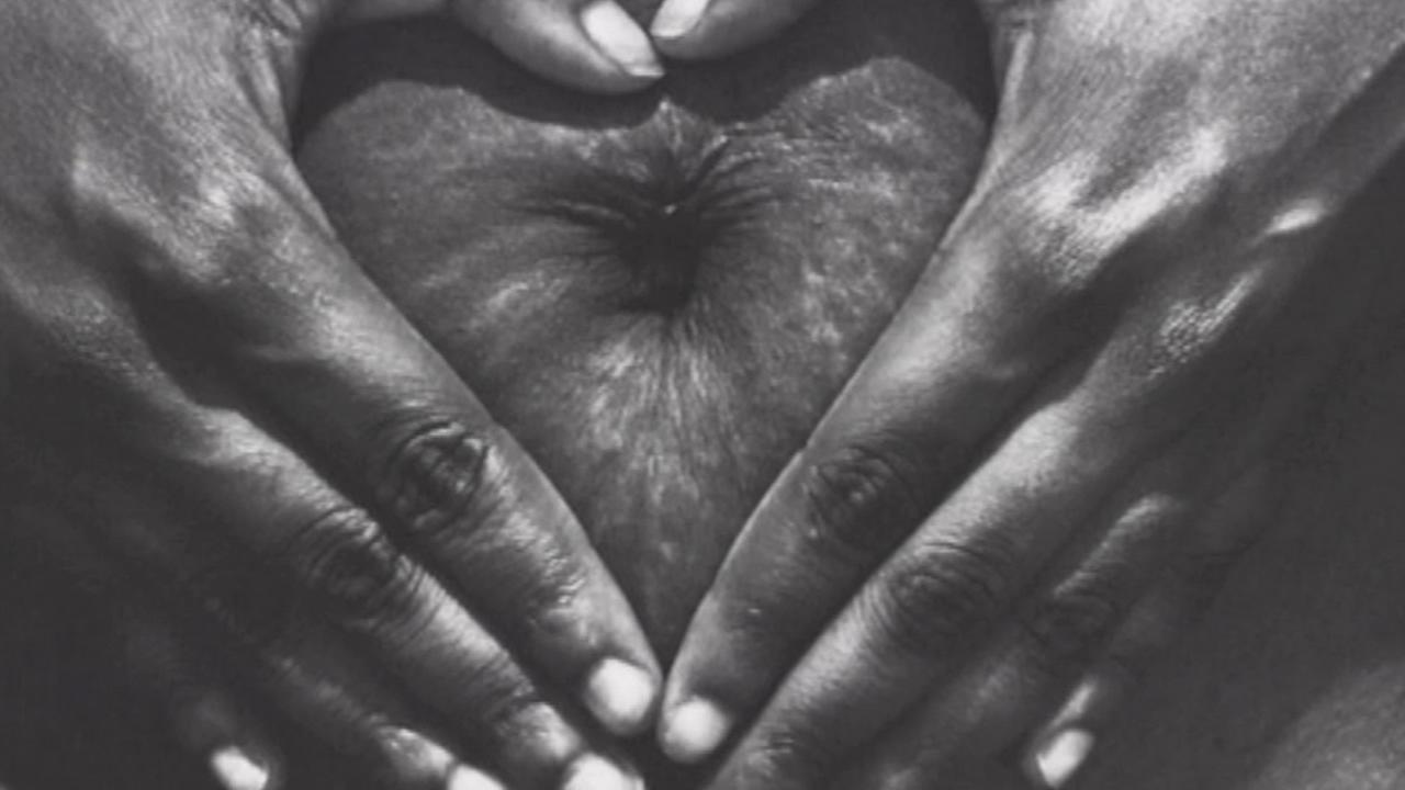 An online campaign started by a pair of moms to empower women to celebrate their stretch marks has gone viral.