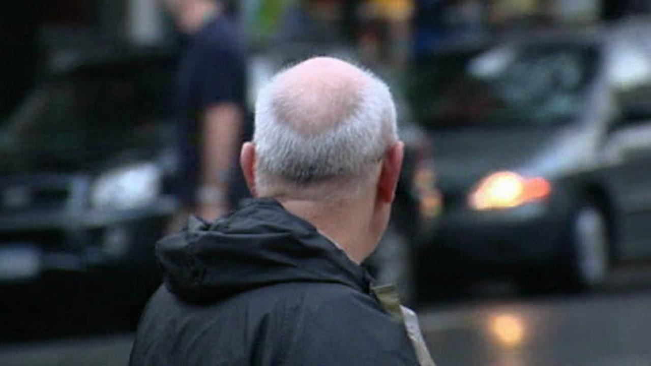 A male who appears to be balding is seen in this undated image.