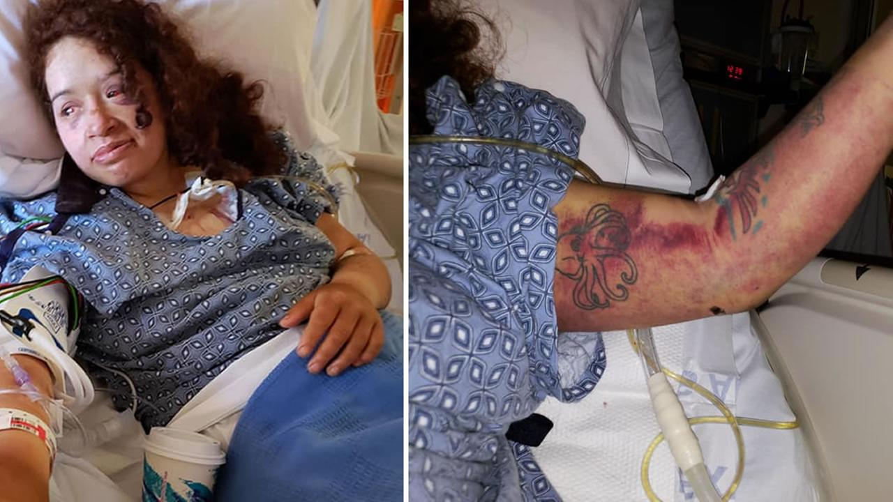 Angela Hernandez shared photos of her injuries on July 15, 2018 after crashing off cliff in Monterey County, Calif.