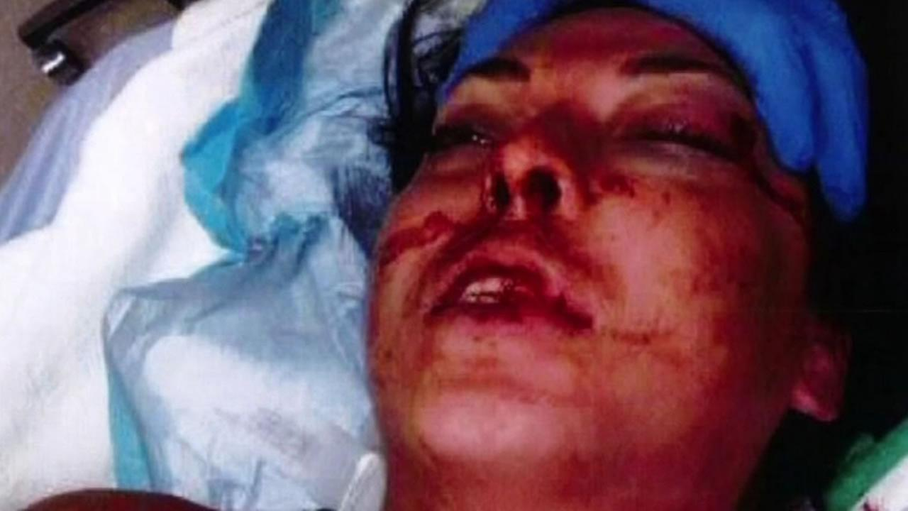 Megan Sheehan suffered injuries on March 17, 2014 after police allegedly used excessive force to subdue her while she was being booked into Santa Rita Jail in Dublin, Calif.