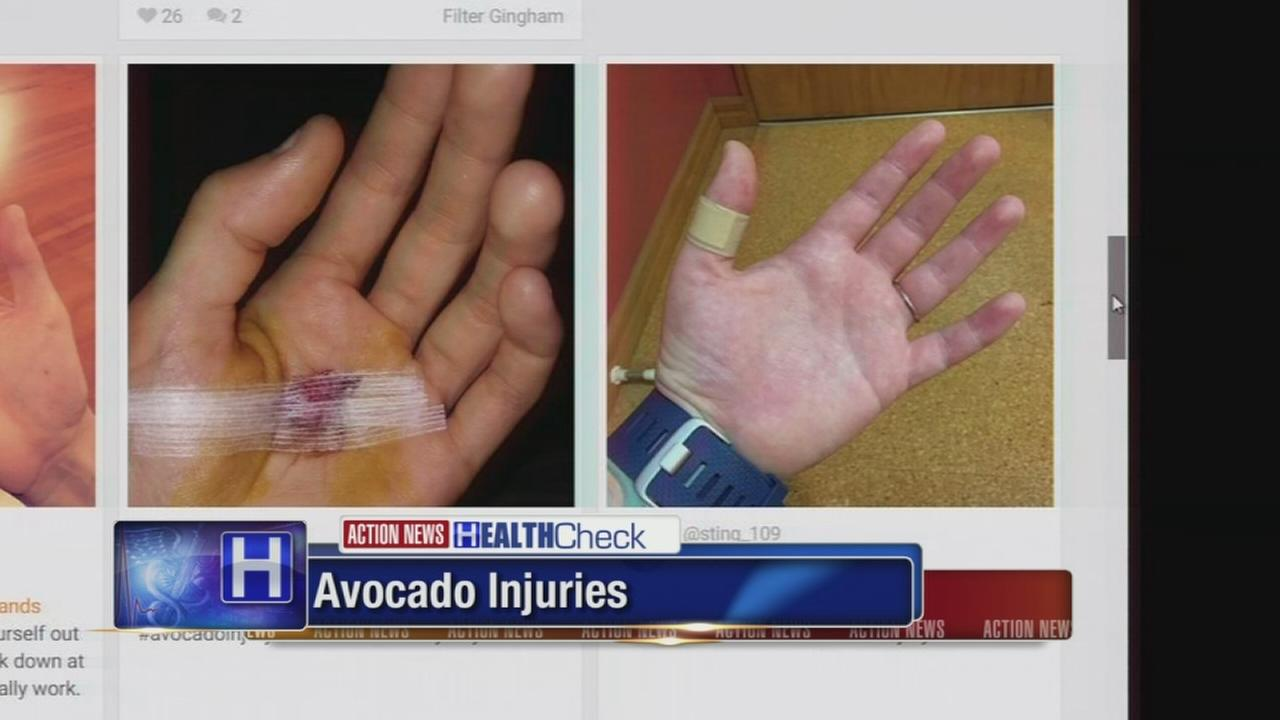 Avocados popularity spawns rise in hand injuries