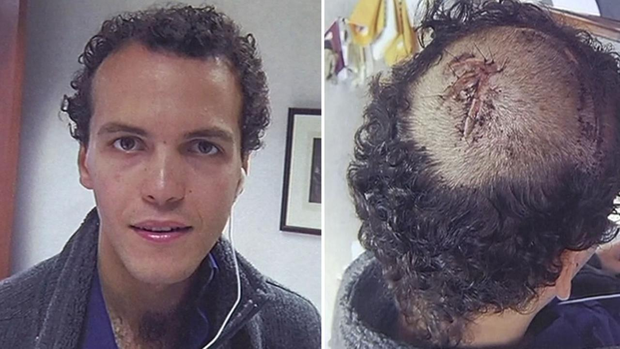 Guylherme Kfouri of Brazil shows off his head injury after getting struck by a tour bus in San Francisco.