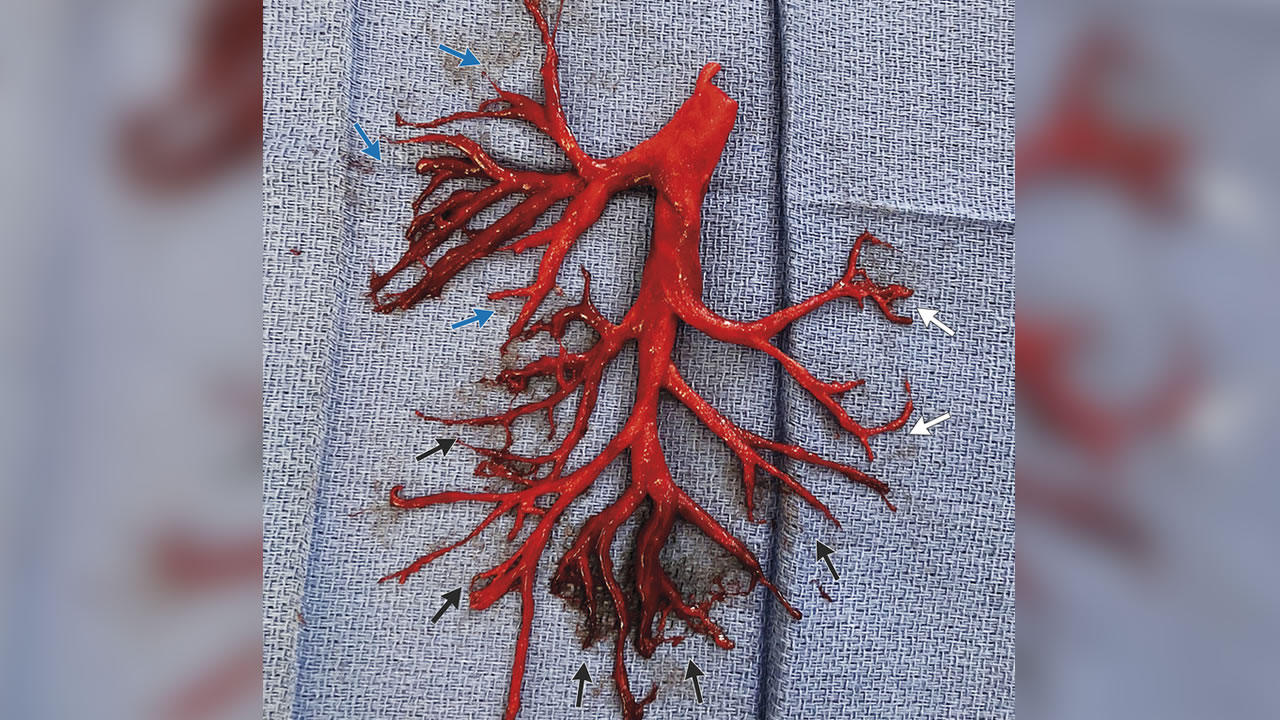This undated image provided by University of California, San Francisco shows a blood clot in the shape of a bronchial tree.