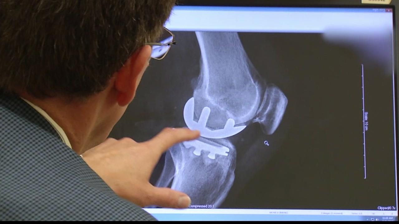 BAY AREA LIFE: The latest in hip and knee joint replacement