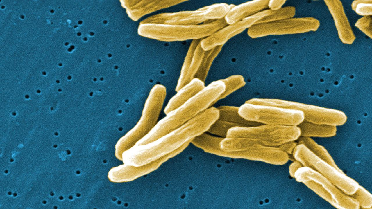 Mycobacterium tuberculosis (TB) bacteria in a high magnification scanning electron micrograph (SEM) image