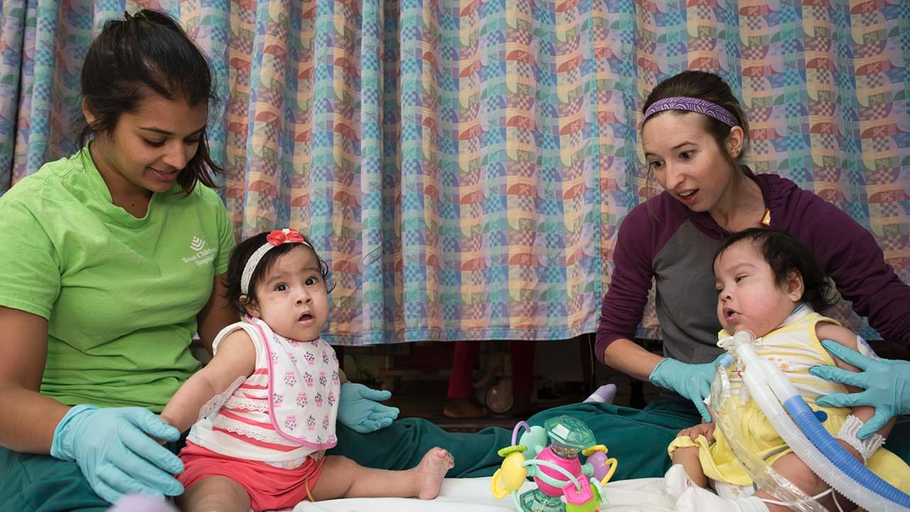Formerly conjoined twins seen at Texas Childrens Hospital
