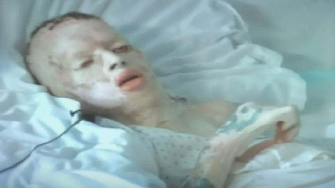 Robbie Middleton was lit on fire on his eighth birthday in 1998. He died in 2011 from cancer that the medical examiner determined was caused by his injuries related to that attack.