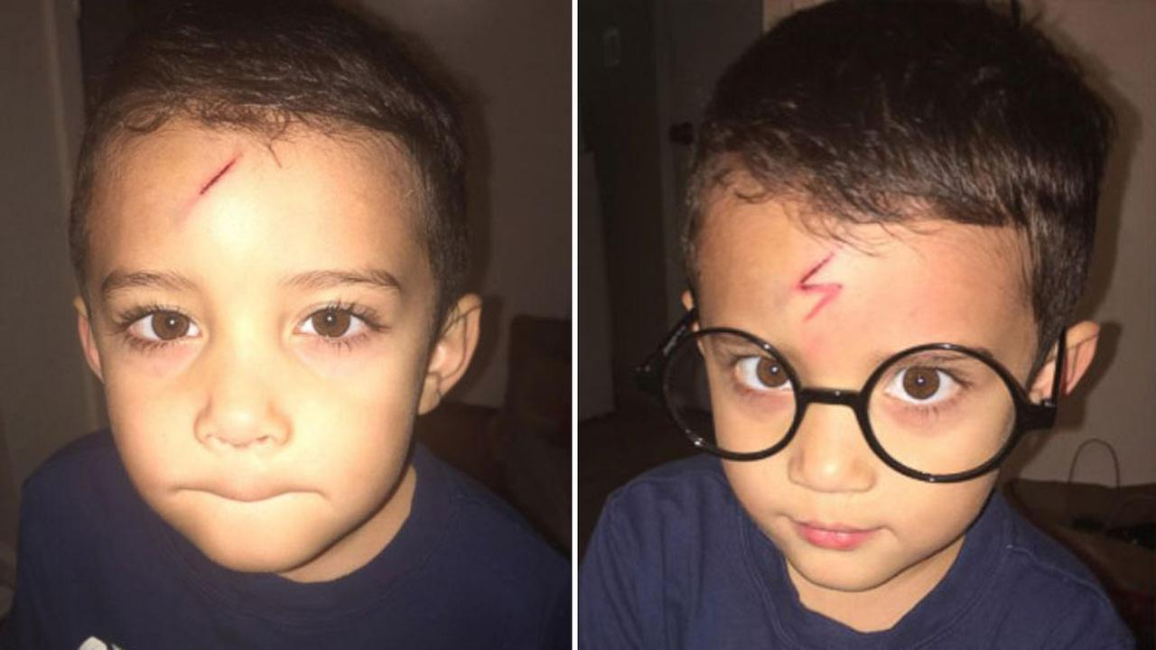 Mom uses son's forehead cut to turn him into Harry Potter