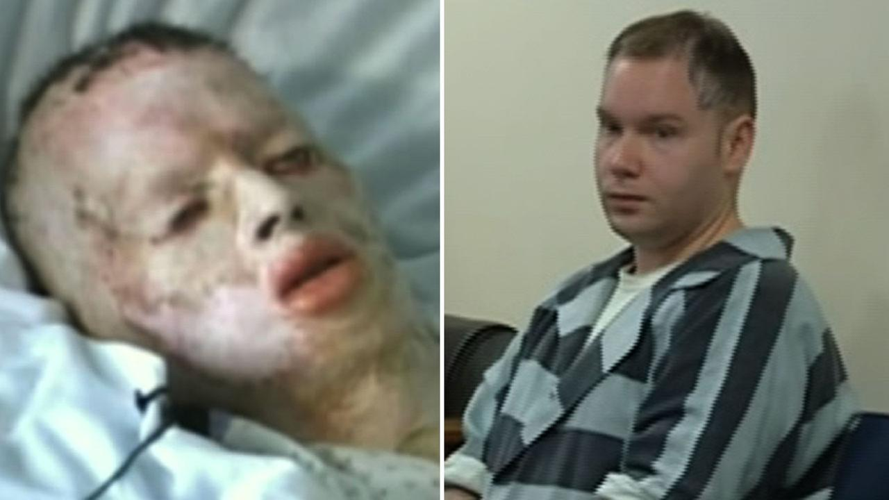 Don Collins  is accused of setting 8-year-old  Robbie Middleton on fire back in 1998