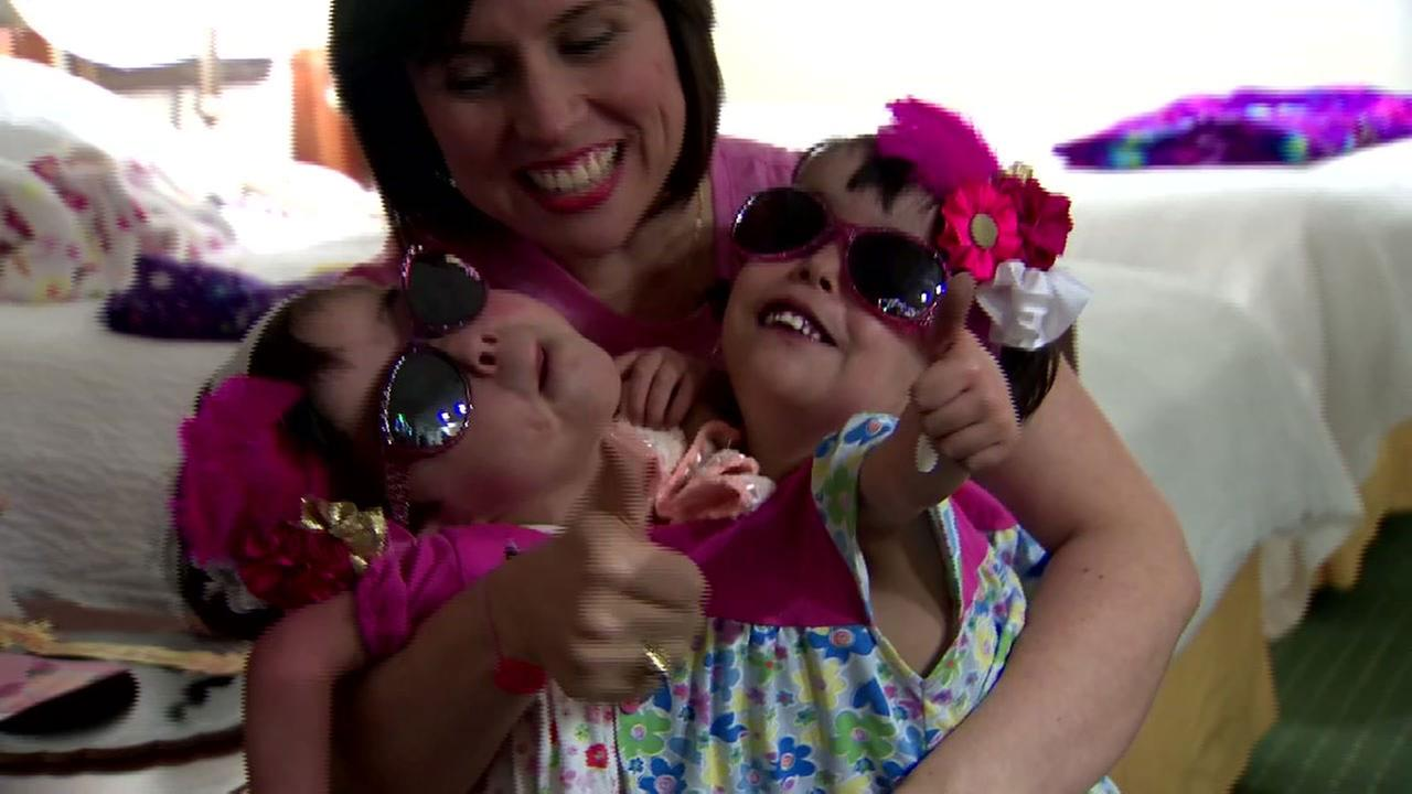 Doctors hope to separate twins, 4, conjoined at heart