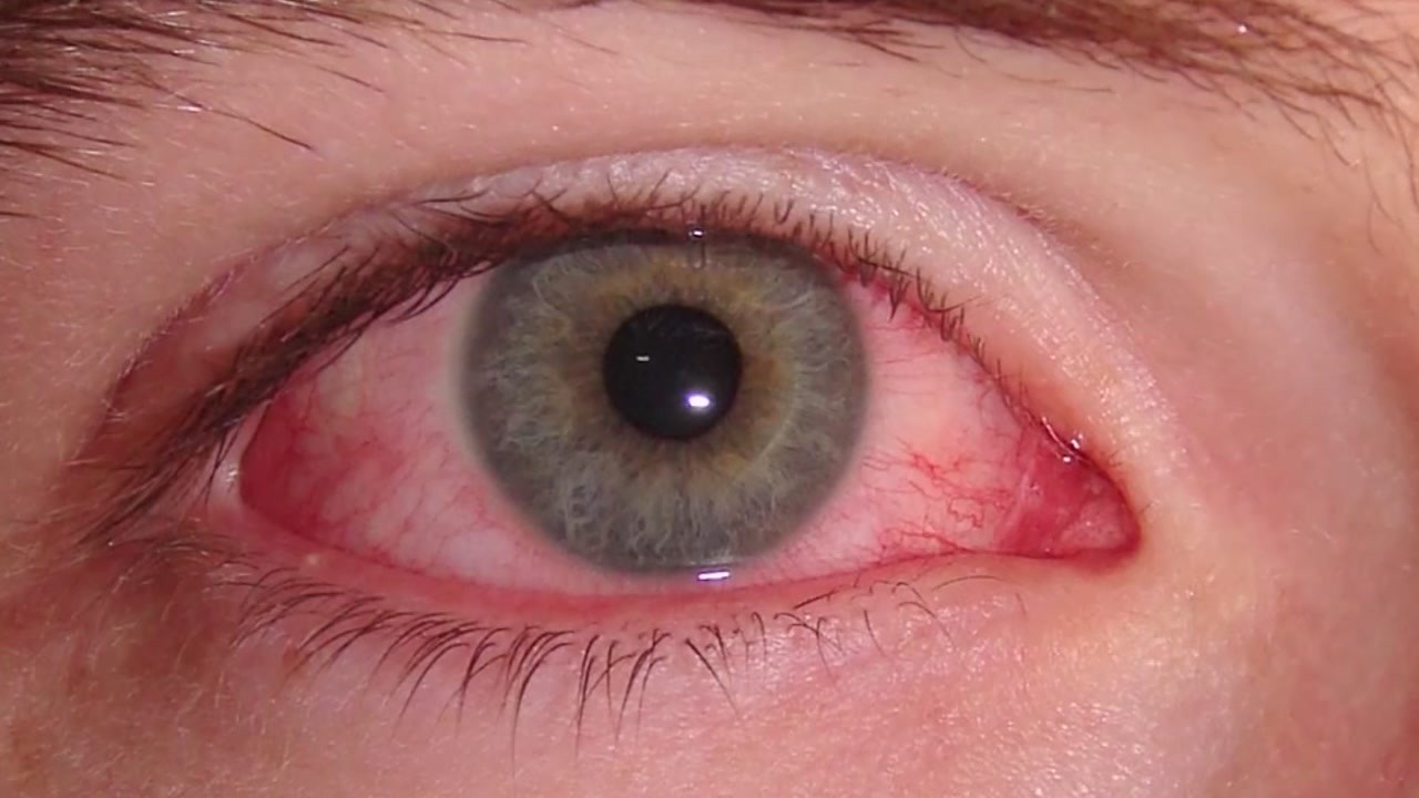 As kids go back to school, parents watch out for pink eye.
