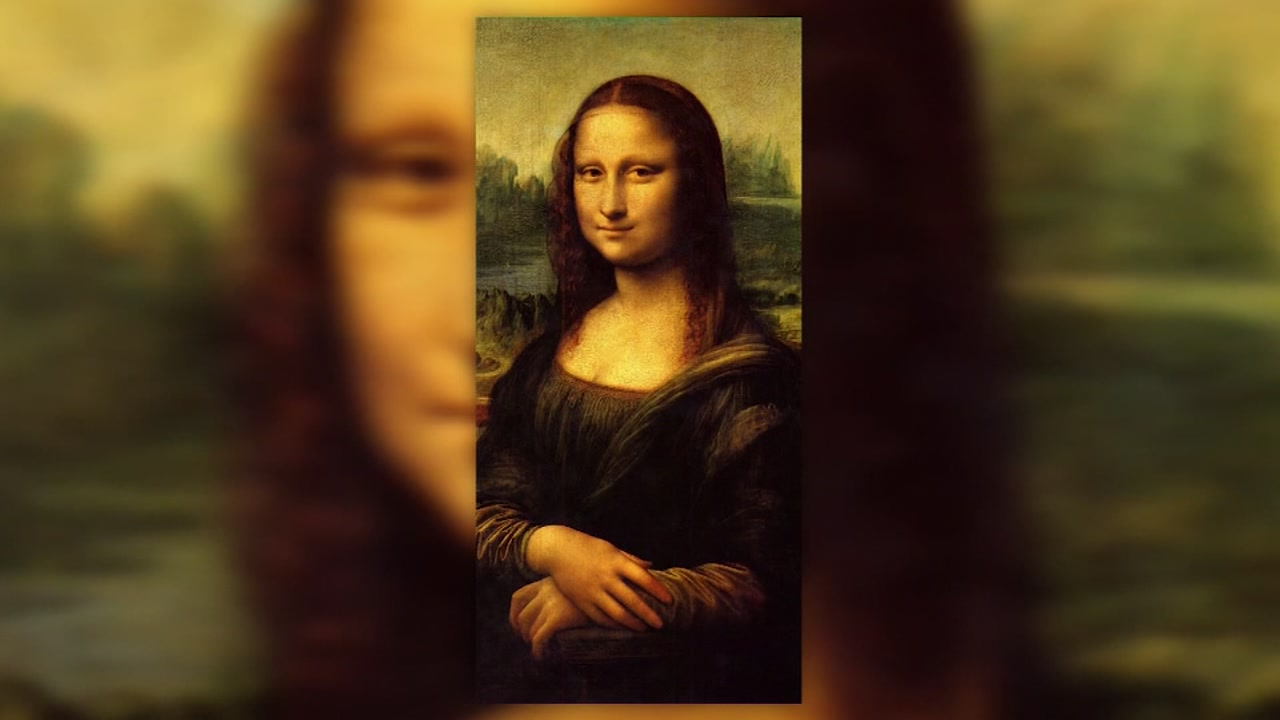 Doctor believes woman in Mona Lisa painting had thyroid condition