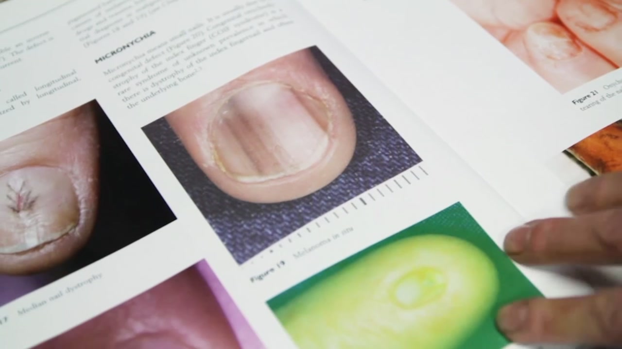 Skin cancer under your nail can be painless, but deadly.