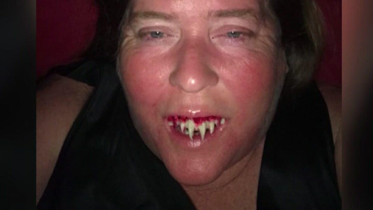 Woman super glues zombie teeth into her mouth for costume.